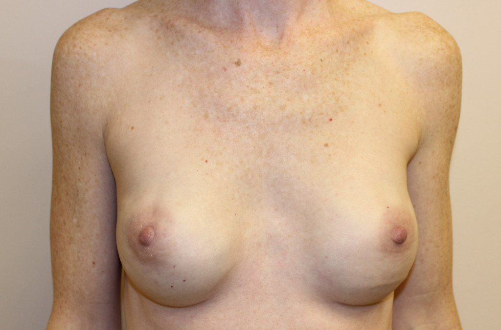 After Reconstructive Breast Surgery